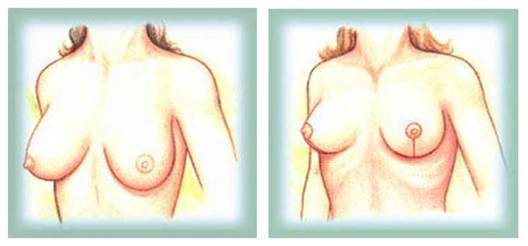 Mamoplastia Redutora Dr. Bruno Navarro Amado Plástica Navarro
